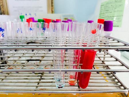 Анализ на наркотики в крови